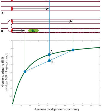 Når blodet i alle vævets kapillærer har samme hastighed (se A), bliver blodets iltning forbedret. Hvis blodets hastighed derimod mindskes i nogle kapillærer og samtidig øges i andre kapillærer, bliver iltningen forringet, selvom den samlede blodgennemstrømning er uændret (se B). Kapillæret i B viser fortykkelsen af basalmembranen, som sker ved aldring. Man forventer, at sådanne forandringer forstyrrer de kapillære flowmønstre. Illustration: Leif Østergaard og Henriette Blæsild Vuust