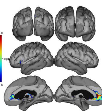 Figuren illustrerer de hjerneområder, som i løbet af seks måneder viser forværring af de kapillære flowmønstre hos patienter med Alzheimers sygdom. Illustration: Simon Fristed Eskildsen, CFIN/MINDLab